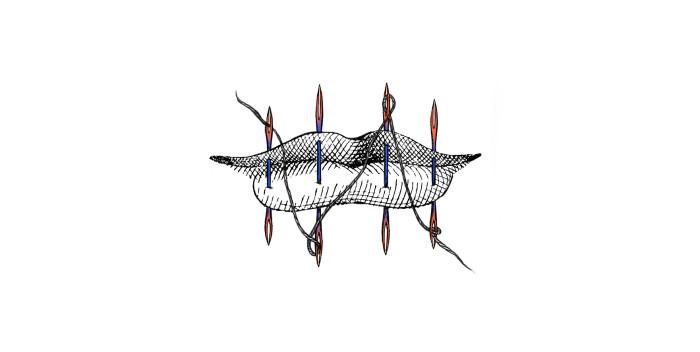 Ilustración por Coral Medrano Ortiz