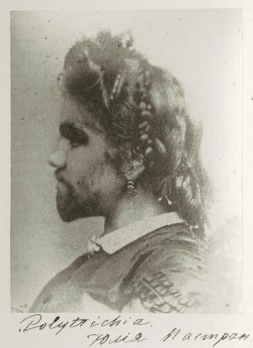 Julia Pastrana. Imagen extraída de Wikimedia Commons.